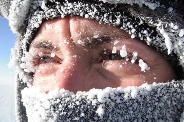 Аллергия на холод-Телеаллерголог